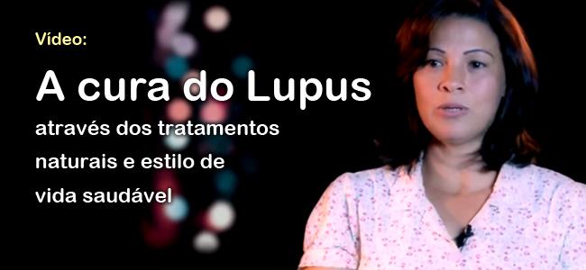 TPV_Lupus